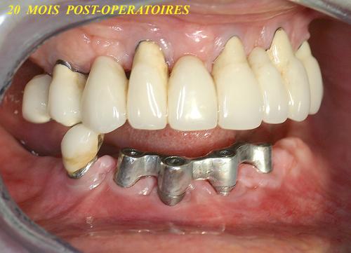 implantologie dentaire l 39 apport du laser paris 20 me 75020 dentiste centre dentaire. Black Bedroom Furniture Sets. Home Design Ideas